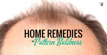 These home remedies for pattern baldness won't cost an arm and a leg.