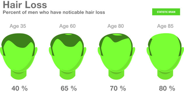 diagram depicting hair loss in men