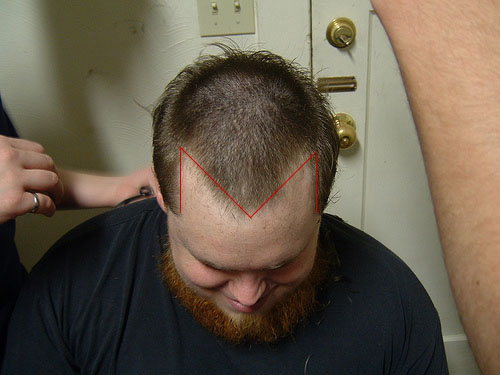 man showing early stages of male pattern baldness