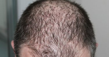 the progression of male pattern baldness