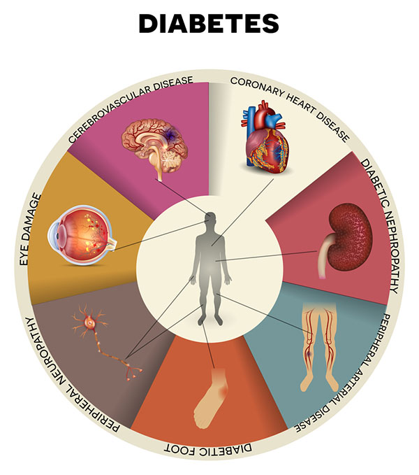 The Complications Of Diabetes