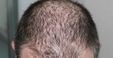 the progression of male pattern baldness