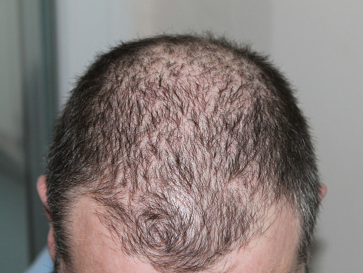 can you slow down hair loss